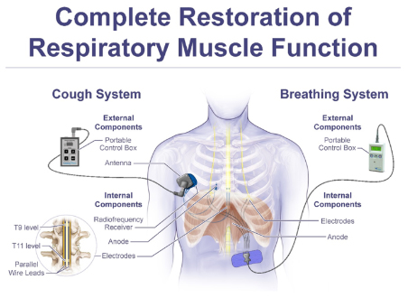 PMR Complete Restoration of Respiratory Muscle Function