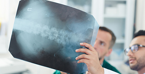 Doctor holding up xray of spine